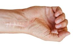 Cicatriz com os pontos no pulso após a cirurgia Fratura dos ossos das mãos no punho isolado no fundo branco fotografia de stock royalty free