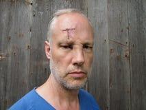 Cicatriz da testa foto de stock