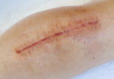 Cicatriz de la cirugía de la rodilla imagenes de archivo
