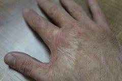 Cicatriz de la quemadura en una mano masculina Fotos de archivo