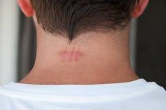 Cicatriz de la sutura Imagen de archivo