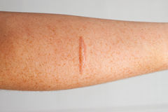 Cicatriz del brazo Fotografía de archivo libre de regalías