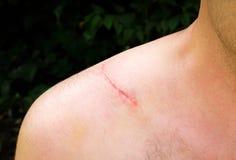Cicatriz en hombre imagenes de archivo