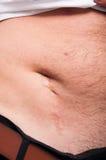 Cicatriz grande después de la cirugía del apéndice Fotografía de archivo libre de regalías