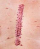 Cicatriz Hypertrophic Imagens de Stock Royalty Free