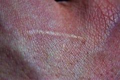 Cicatriz velha em uma grande aproximação foto de stock royalty free