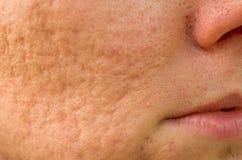 Cicatrizes da acne fotografia de stock
