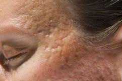 Cicatrizes da acne imagens de stock