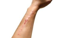 Cicatrizes de cirurgia quebrada do braço no fundo branco Fotos de Stock