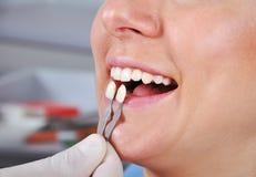 Cień determinaci ząb Obraz Royalty Free