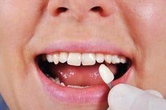 Cień determinaci ząb Obrazy Stock