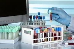 Cientista com um tubo do sangue na frente de um tela de computador Fotos de Stock