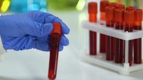 Cientista do laboratório que toma o tubo de ensaio com amostra de sangue, teste bioquímico filme