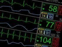 Cierpliwi ` s zasadniczy znaki na ICU monitorują Zdjęcia Stock