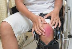 Cierpliwy obsiadanie w wózku inwalidzkim cierpi od kolano bólu zdjęcia stock