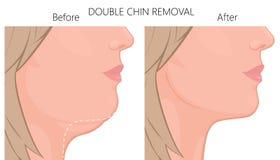 Cierre view_Double de cara mayor del retiro de la barbilla para arriba libre illustration
