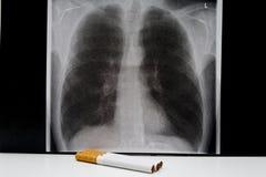 ciga płuca promienia palacz x Obrazy Stock