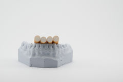 Cigarettes on teeth model. Cigarettes  on gray teeth model Royalty Free Stock Images