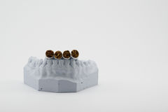 Cigarettes and teeth model. On white background Royalty Free Stock Images