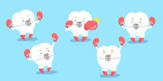Cinta e encaixotamento do desgaste de dente Imagem de Stock