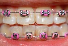 Cintas da cor-de-rosa foto de stock royalty free