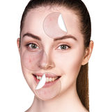 Circles with acne unstick from healthy skin. Stock Images