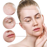 Circles shows problem skin of young woman. Circles shows problem skin with acne of young woman over white background Royalty Free Stock Images