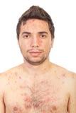 Ciérrese encima de hombre con varicela Imagen de archivo libre de regalías