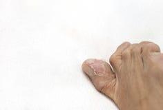 Ciérrese encima de los hombres del pie que pelan la piel Imágenes de archivo libres de regalías