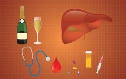 Cirrhosillustration med levermedicinalkohol som den verkliga orsaken Royaltyfri Bild