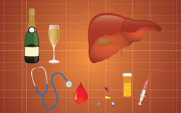 Cirrhosis illustration with liver medicine alcohol as the real cause Royalty Free Stock Image