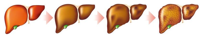 Cirrhosis of the liver Stock Photos