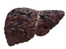 Cirrose de fígado Fotos de Stock