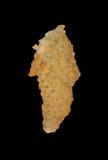 Cirrosis del higado Foto de archivo