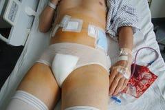 Cirugía abdominal Fotos de archivo libres de regalías
