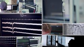 Cirugía cardiia real Monitores en una sala de control El cirujano hace manipulaciones con un paciente en un cuarto de operación almacen de video