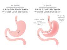 Cirugía de Bariatric de la grapa del estómago ilustración del vector