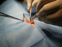 Cirugía de la hernia abdominal Foto de archivo libre de regalías