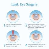 Cirugía del ojo de Lasik Ilustración del vector Foto de archivo