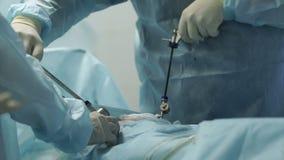 Cirugía difícil de proceso en el útero almacen de metraje de vídeo
