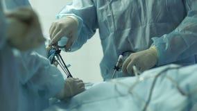 Cirugía difícil de proceso en el útero metrajes