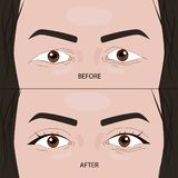 Cirugía doble del párpado antes y después del ejemplo stock de ilustración