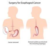 Cirugía para el cáncer del esófago ilustración del vector
