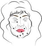 Cirugía plástica facial Foto de archivo