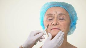 Cirujano que coloca el escalpelo a envejecer la cara paciente femenina con las marcas, elevación de cara metrajes