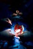 Cirujanos del trabajo en equipo durante la cirugía a corazón abierto Imagen de archivo libre de regalías