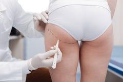 Cirurgião plástico profissional que prepara seu corpo dos pacientes para mudanças foto de stock