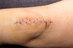 Cirurgia do joelho fotografia de stock