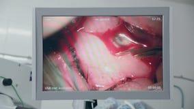 Cirurgia do olho na tela dos doutores Cirurgia da remoção da catarata Fim acima video estoque