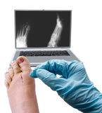 Cirurgia do pé Fotos de Stock